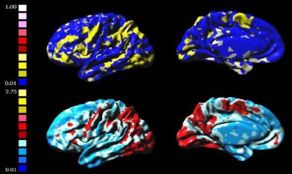 dibujo20090327fmrirelativefrequencybrainactivationmaps