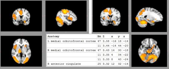 Dibujo20090805_Greater_activation_several_brain_areas_during_marijuana_cues_compared_with_neutral_cues_C_PNAS