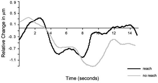 Dibujo20131014 changes frontal lobe total hemoglobin concentration pre-permanent condition - Natalie Portman - 2002